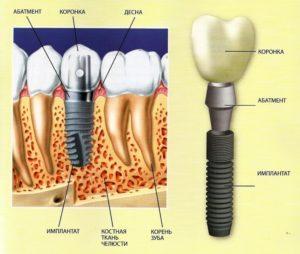 имплантация зубов позняки