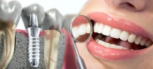 ddent-имплантация зубов